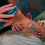 foot cupping